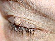 Фиброма: понятие, лечение, удаление