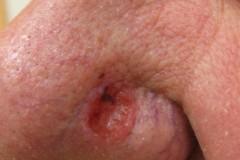 Базалиома кожи: симптомы, лечение и удаление