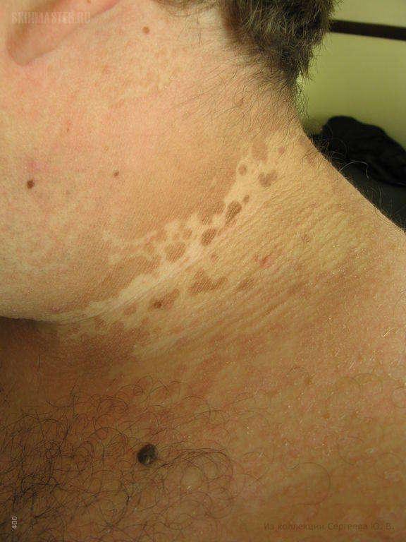 отрубевидный лишай фото у человека лечение