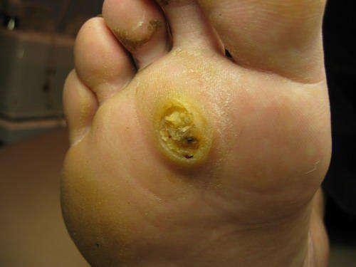 Как вывести вирус папилломы человека из организма как