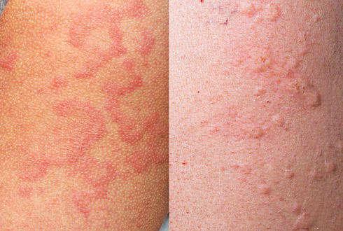 Детские болезни история болезни атопический дерматит