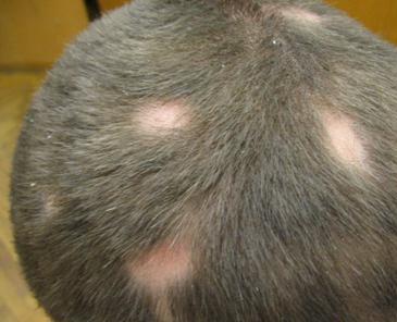 Стригущий лишай: лечение, симптомы, профилактика, признаки