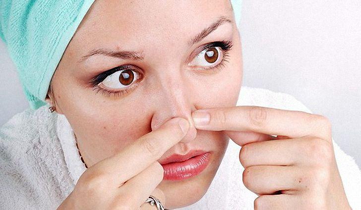 На фото: Давить черные точки на носу