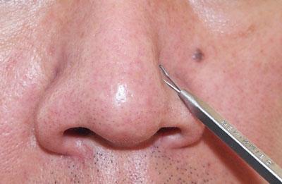 На фото: Черные точки на носу