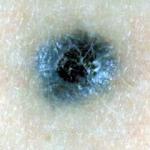 черная родинка меланома