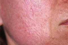 Демодекс: причины заболевания, его симптомы, как провести анализ и эффективное лечение