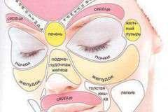 Значение прыщей на лице: на что указывают прыщи на той или иной области лица