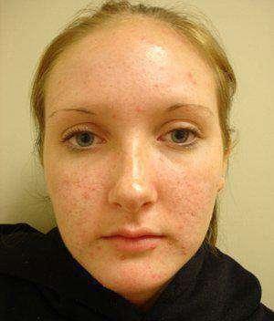 Косметическое масло для сужения пор на лице