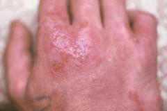 Как возникает аллергический дерматит и как его лечить