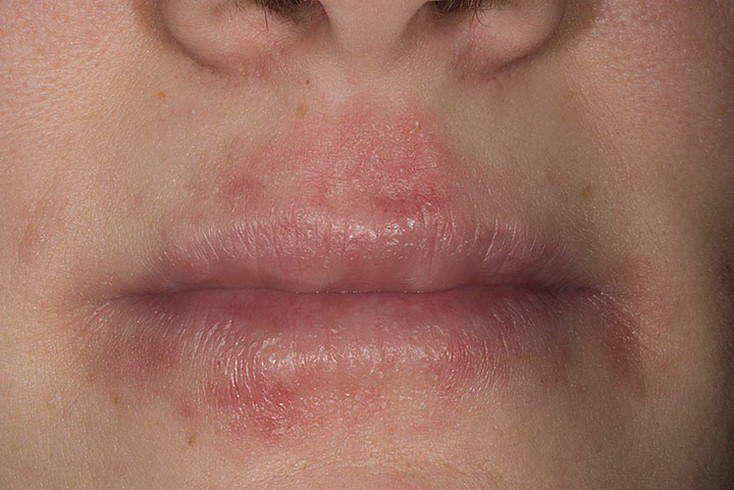 дерматит симптомы и лечение у взрослых на лице фото