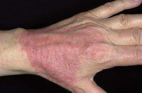 Атопический дерматит оак