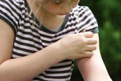 Питание при контактном дерматите: помоги своему организму изнутри