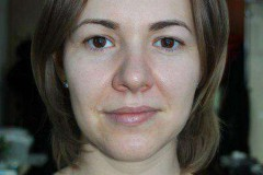 Себорейный дерматит (жирная экзема) на лице: как распознать и что делать?