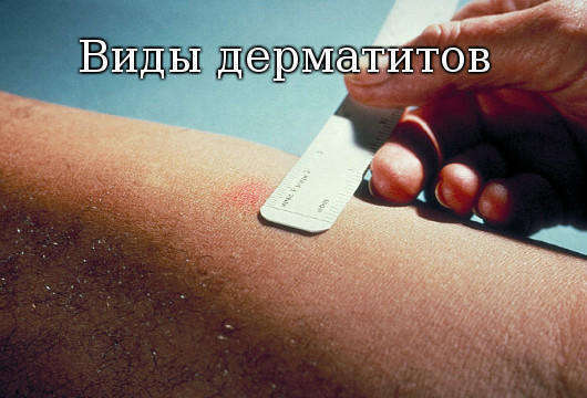 дерматиты