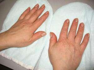 Что делать при дерматите на руках?