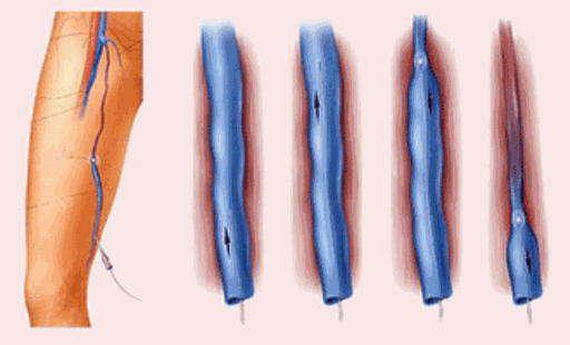Причины появления варикозного дерматита