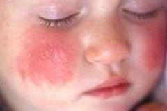 Профилактика и лечение при контактном дерматите у детей