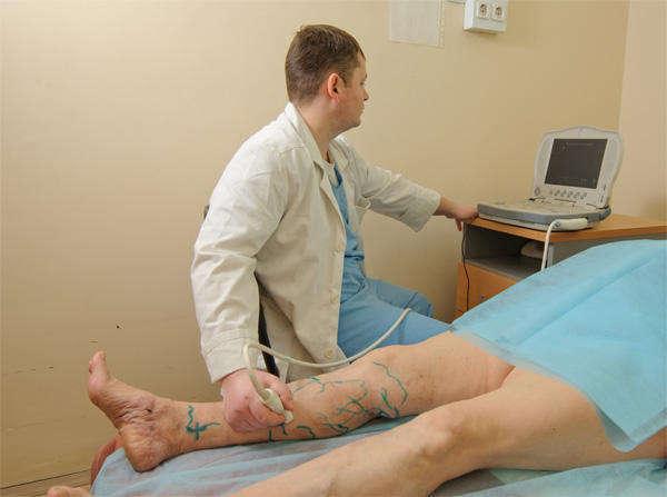 Диагностика венозной экземы