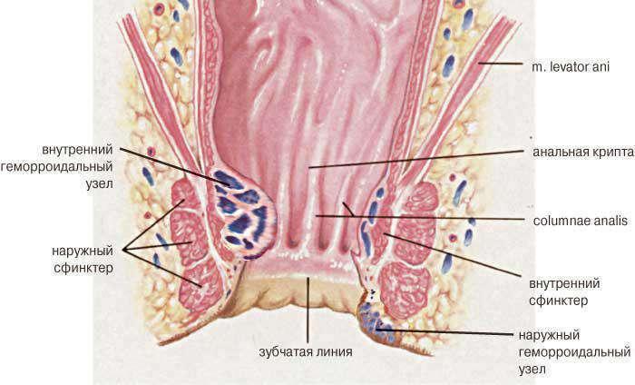 Кондиломы у женщин во влагалище внутри
