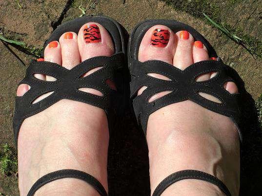 Причины дерматита на ногах