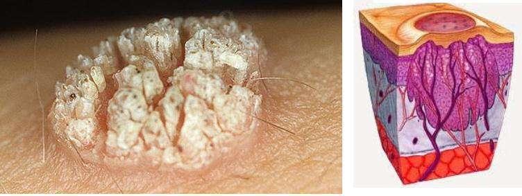 Причины возникновения дерматитов