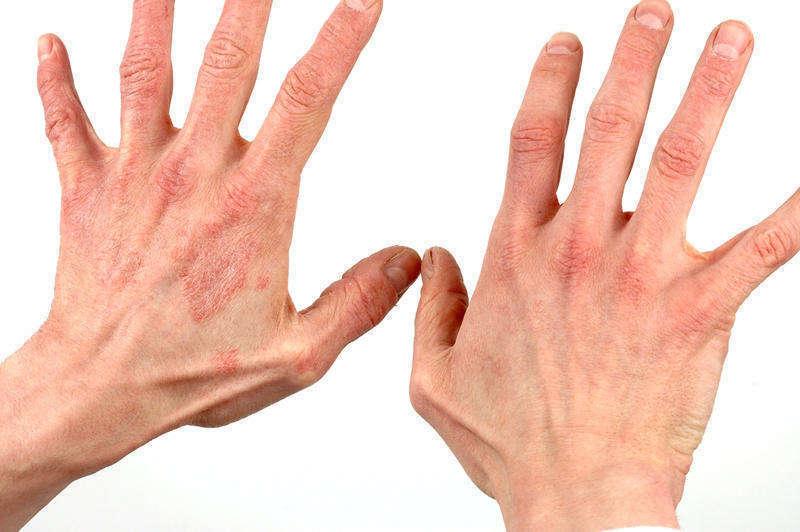 Причины возникновения дерматита на руках