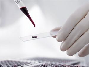 На какие аллергены сдается кровь для анализа