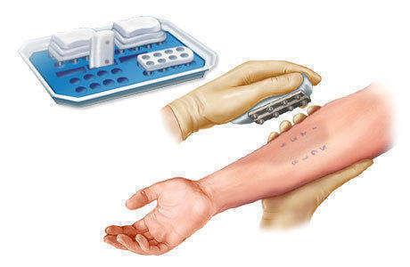 Инсектная аллергия: лечение