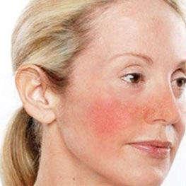 Способы лечения аллергических проявлений на коже лица