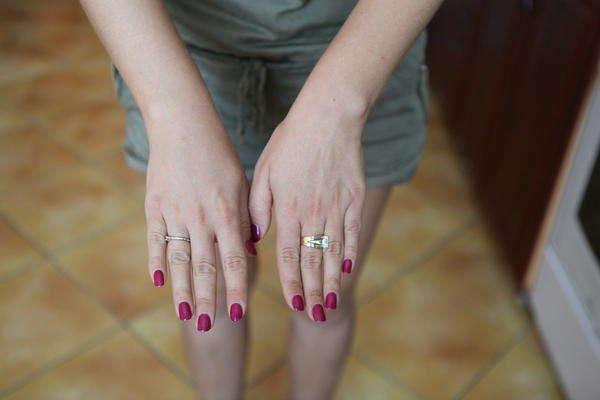 пищевая аллергия на руках чем лечить