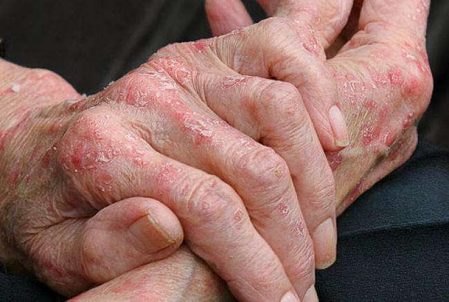 Если аллергия на руках