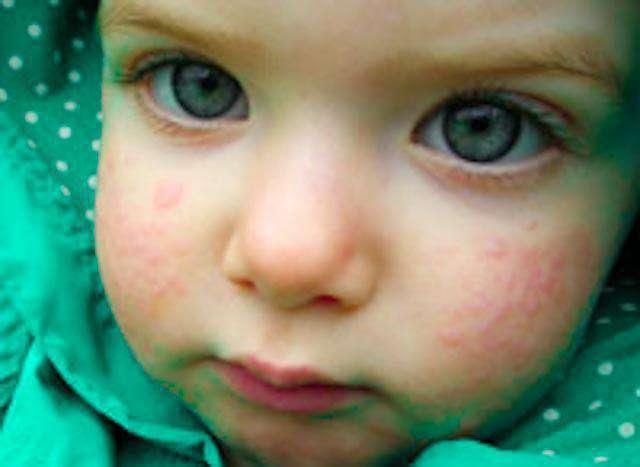 Симптомы аллергии у детей и взрослых