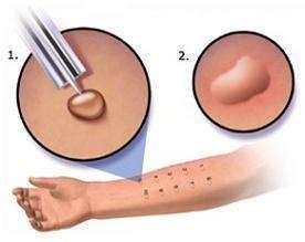 Противопоказания к проведению тестирования аллергии