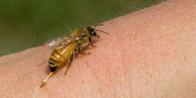 Гиперчувствительность к укусам ос, пчел, шершней
