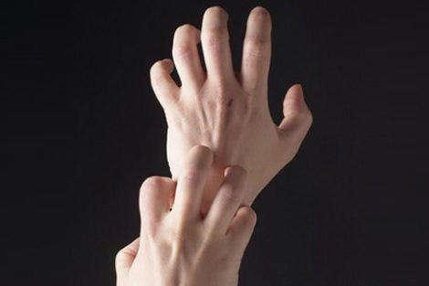Как вылечить аллергию на руках?