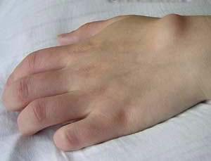 Удаление гигромы с помощью лазерной терапии