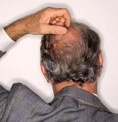 Как избавиться от жировика на голове