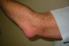 Посттравматическая гигрома: методы лечения