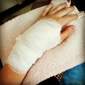 Избавление от гигромы без операции