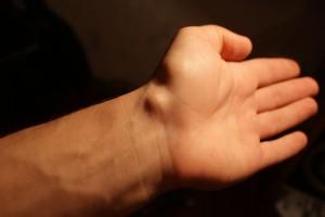 Как избавиться от гигромы