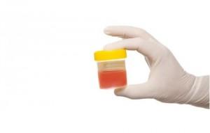 Фармакологическое воздействие на кистозную опухоль