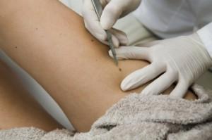 Способы лечения маленького подкожного жировика