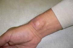 Сухожильные гигромы: методы оперативного лечения