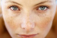 Как быстро и эффективно избавиться от покраснений на лице