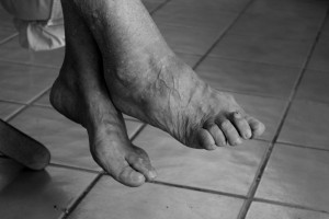 Виды болезненных проявлений на стопе