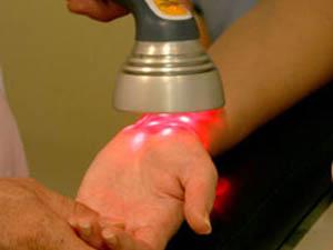 Фототерапия – светолечение псориаза