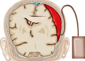 Методы лечения субдуральных гигром