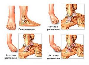 Как справится с гигромой сухожилия