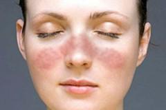 Фурункулы на теле: причины и лечение