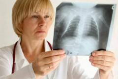 Липома на передней стенке брюшной полости: диагностика и лечение